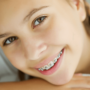 Five Hygiene Tips for Kids With Braces